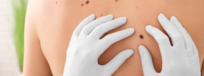 Cate tipuri de cancer de piele exista