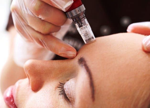 Ce este Mezoterapia faciala