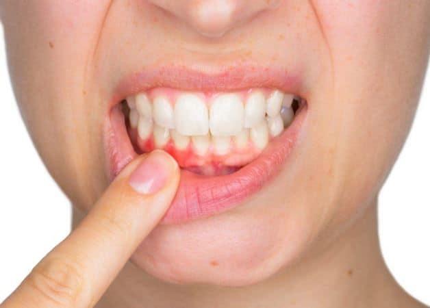 Parodontoza – cauze, simptome, tratament parodontoza