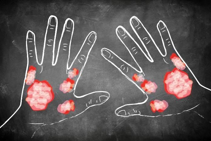 Psoriazis: cauze, simptome, tratament | bekkolektiv.com